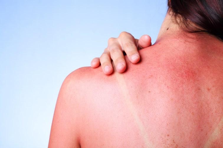 Que doit-on savoir sur le cancer de la peau ?