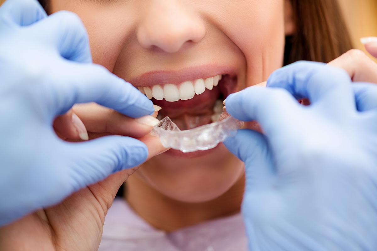 Quel est le niveau de remboursement de la parodontite ?