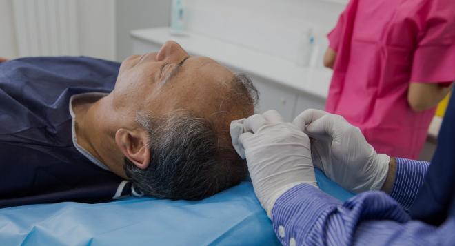 Implant capillaire : la nouvelle intervention esthétique tendance